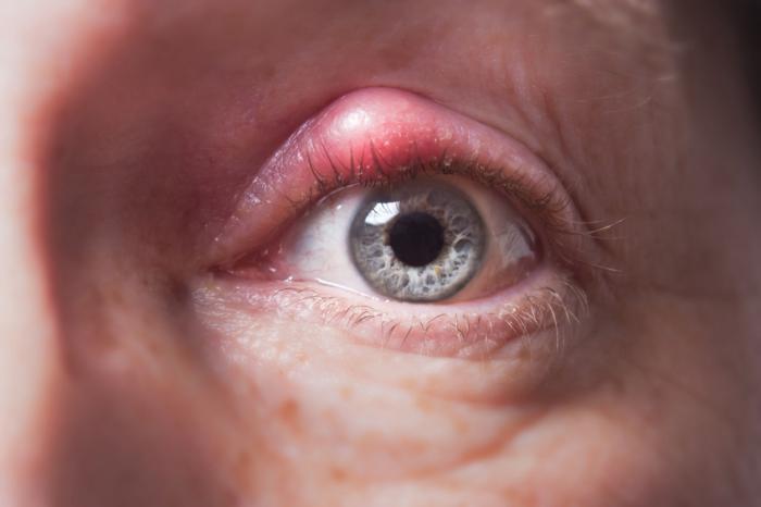مشاكل في العينين