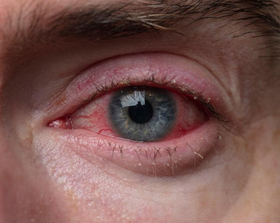 التهاب الجفن الأمامي | انجکس