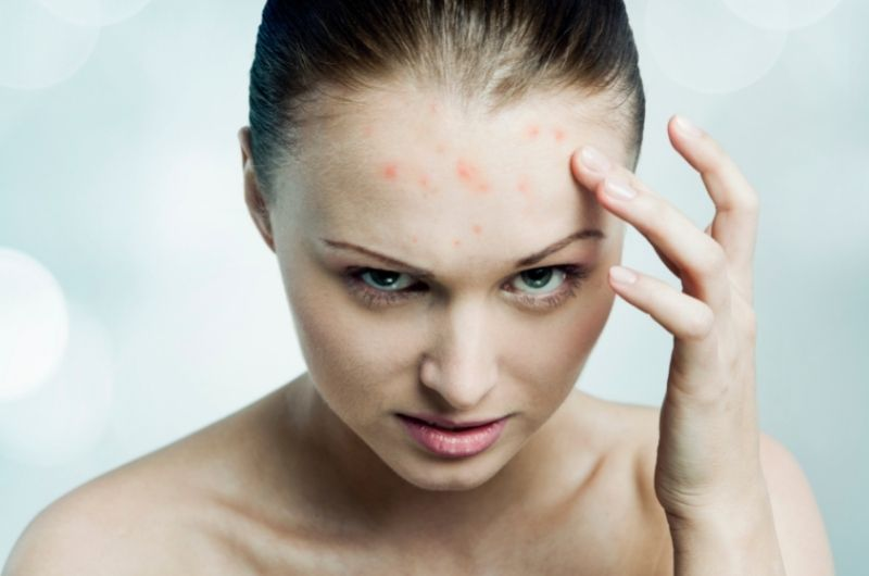 acne and demodex