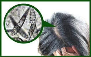 Stop Hair Loss by Demodex Hair Mites Treatment
