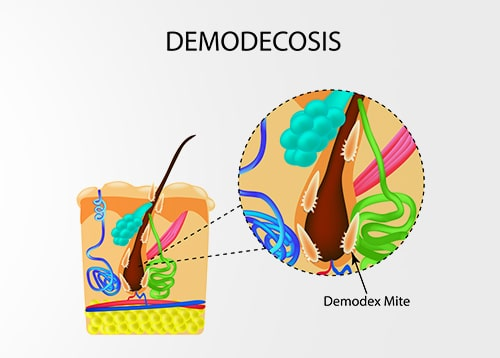 Demodex ungex