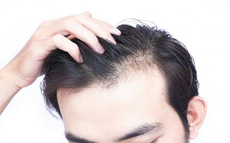 Demodex Hair Loss - Ungex Solutions